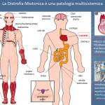 Distrofia Miotonica, una patologia multisistemica